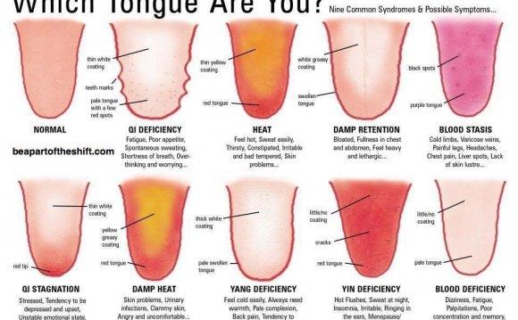 My tongue looks funny