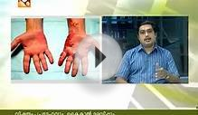 Dr. Gopakumar (Govt. Ayurveda College, Trivandrum) on